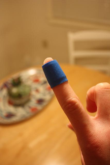 burned my finger again